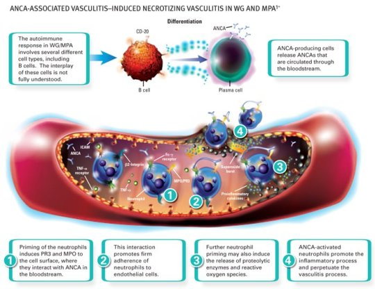 Vasculitis wreaks havoc on the body's vessels of the vascular system.